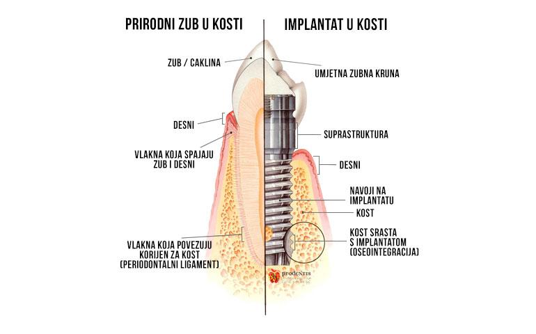 implantat-usluge