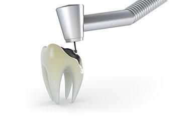 Opća dentalna medicina