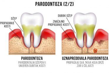 Parodontoza-2