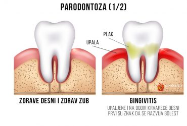 Parodontoza-1