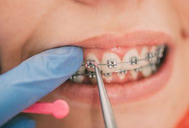 Fiksni dentalni aparatić