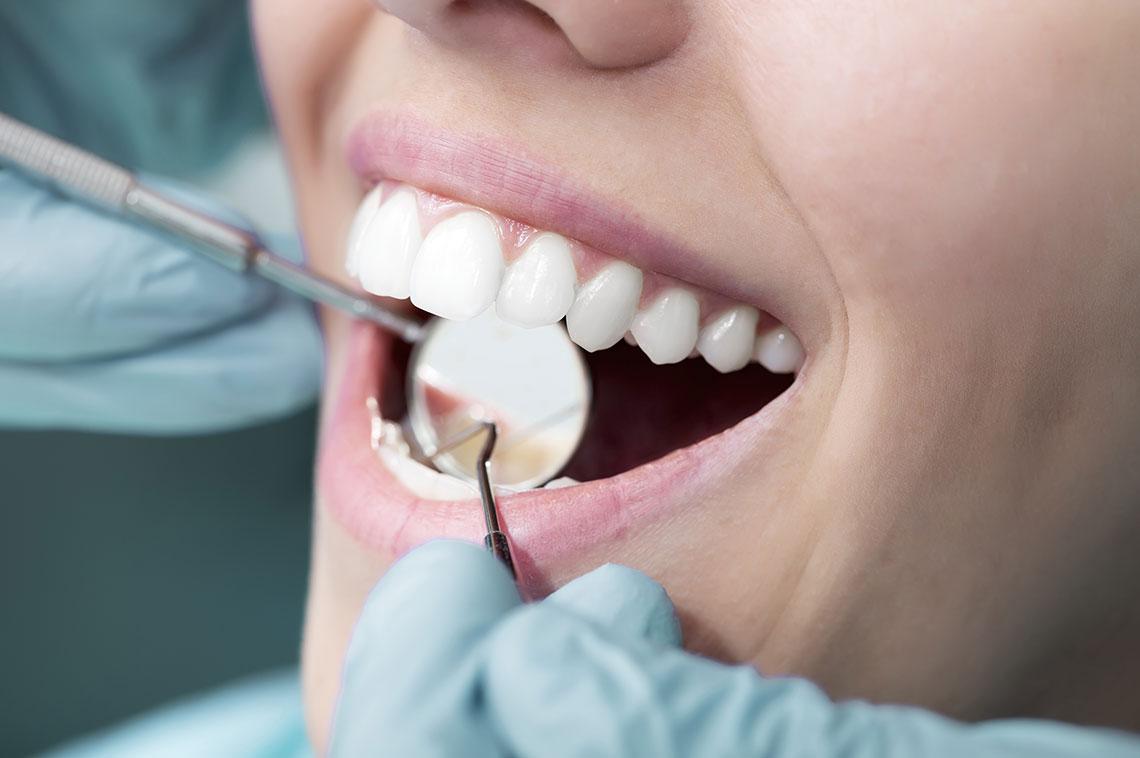 Čisti zub ne može oboljeti niti dobiti karijes.